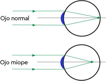 qué es miopia - diferencias entre ojo normal y miope