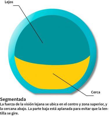 Lentillas segmentadas ¿cómo funcionan?